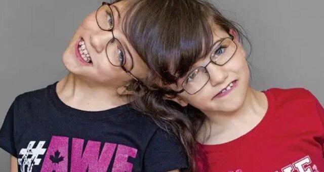 Tatiana i Krista bliźniaczki syjamskie