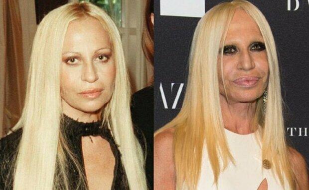 Donatella Versace przed operacjami plastycznymi i po.