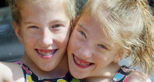 bliźniaczki syjamskie