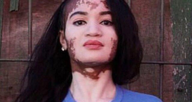 Dziewczyna przez lata chowała twarz pod grubą warstwą makijażu